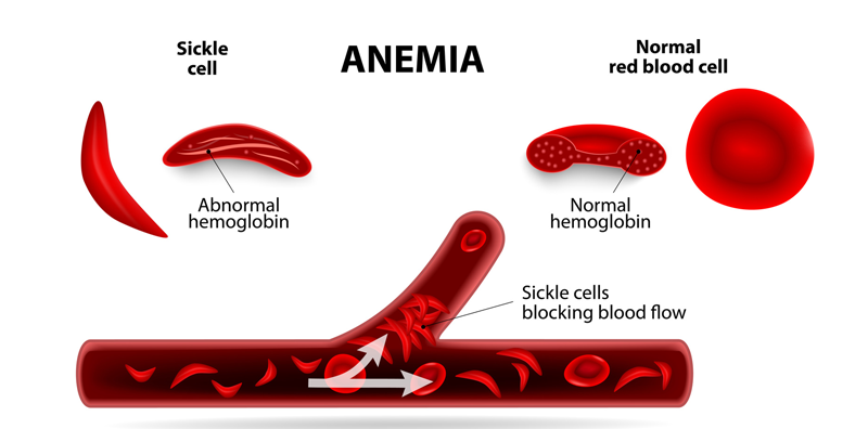 What is Sickle Cell Anaemia and How Can PGD Help?