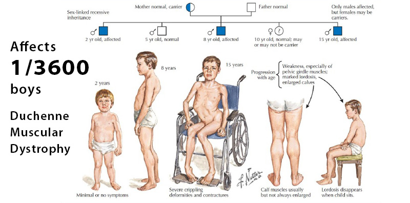 Genetic conditions that may affect your sons and daughters