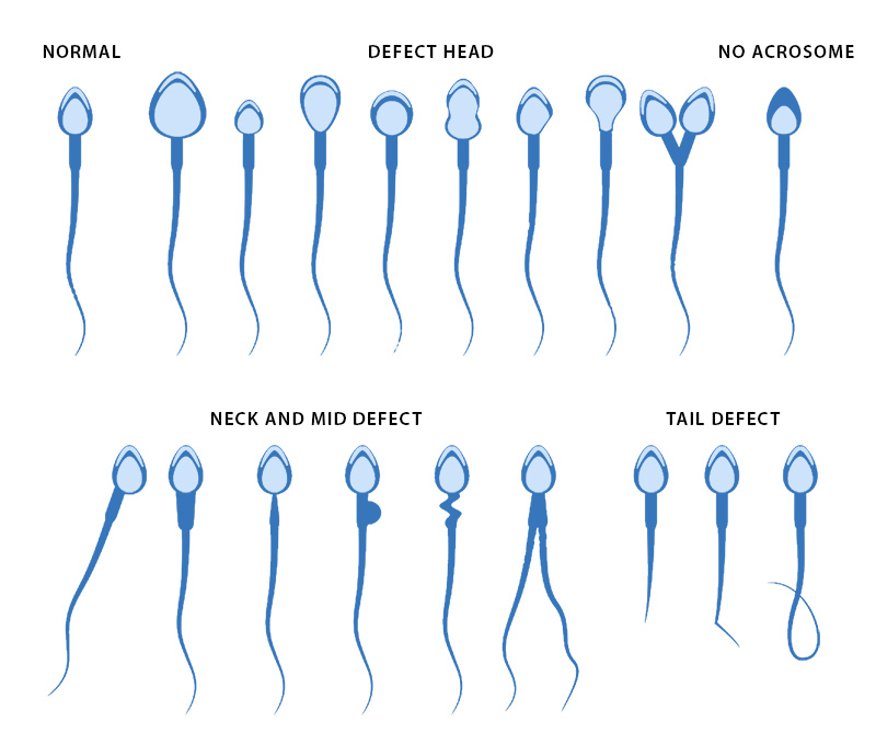 Semen analysis showed no sperm labour