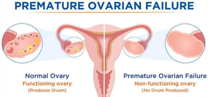Unravelling the Mystery behind Premature Ovarian Failure